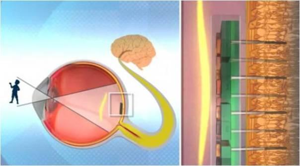 retina bionica